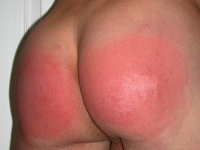 Blistered Red Ass